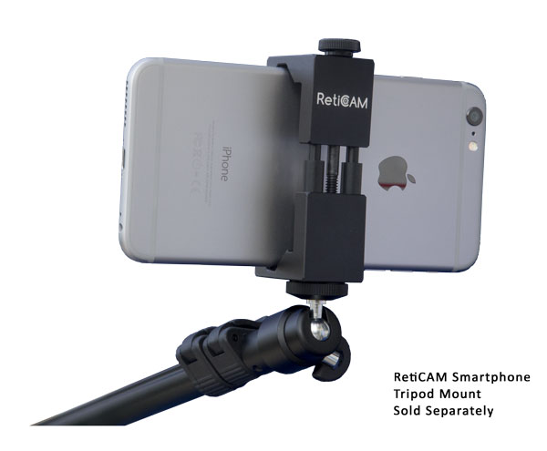 RetiCAM Selfie Stick MP55