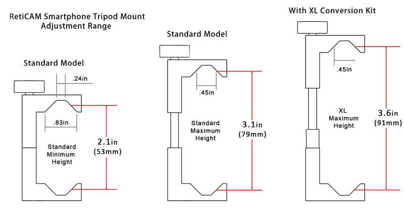 RetiCAM Smartphone Tripod Mount Dimensions